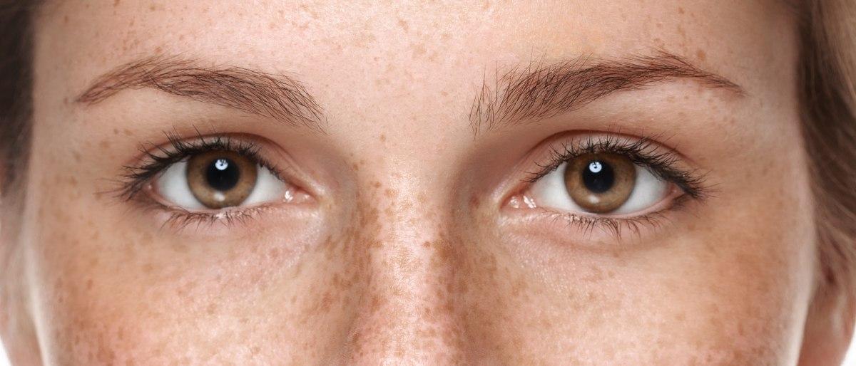 suhe oči lahko doletijo vsakogar