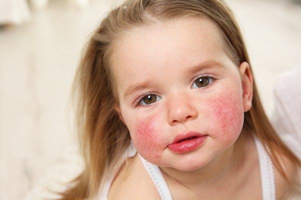 zanimivost o alergiji: alergija se pri otrocih pogosto kaže na koži